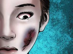 【恐怖漫画 短篇】活人身上长尸斑